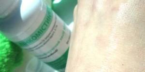 Развеиваем мифы об антисептиках